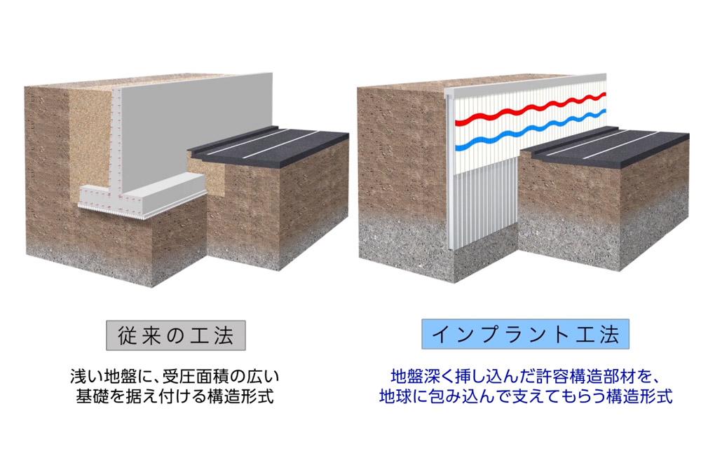 インプラント構造 「施工工程比較」